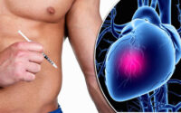 steroids and heart